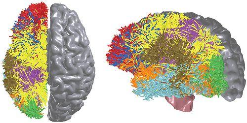 IBM cerveau
