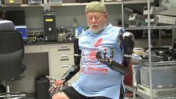 Bras bioniques 1