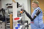 Première implantation mondiale de deux bras bioniques sur un même patient