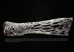cortex platre 3D (2)
