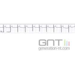 Electrocardiographe small