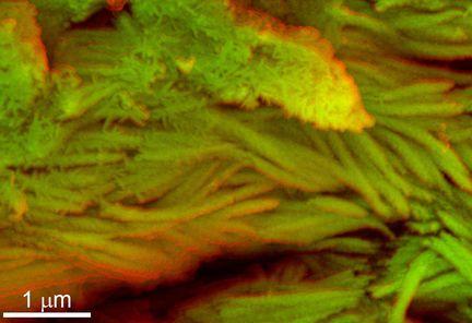 globules et collagène T-Rex