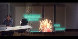 Hololens limites techniques