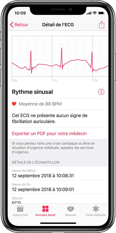 apple-watch-iphone-details-ecg