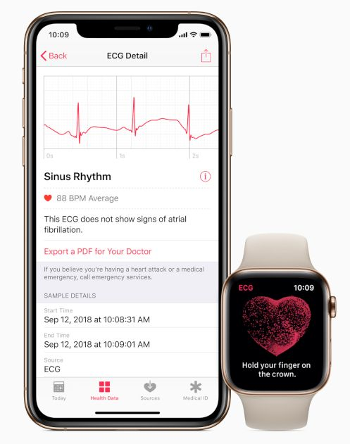 Apple-Watch-Series-4-sante-electrocardiogramme-iPhone-Xs