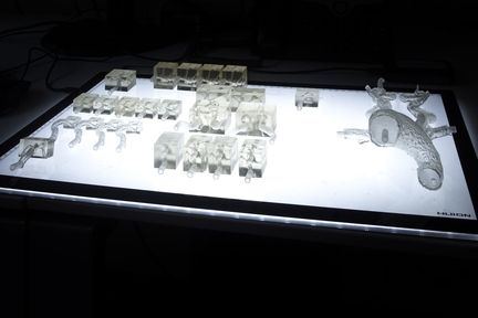 imprimante-3D-arteres-operation-1